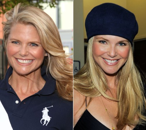 Christie Brinkley : facelift : neck lift : botox : juvederm