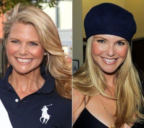 Christie Brinkley : facelift : neck lift : botox : juvederm