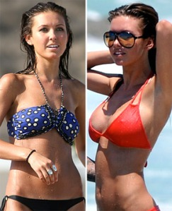 Audrina Patridge : breast augmentation : breast implants : celebrity cosmetic surgery : plastic surgery