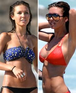 Audrina Patridge : breast augmentation : breast implants : celebrity cosmetic surgery : plastic surgery