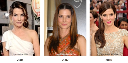 Sandra Bullock : Celebrity cosmetic surgery : blepharoplasty : Juvederm : Botox : brow lift