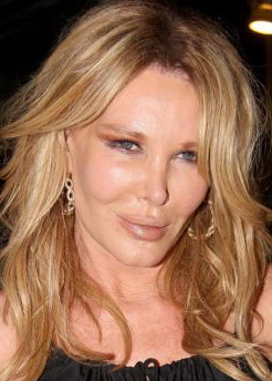 Christine Forsyth-Peters : Celebrity cosmetic surgery : plastic surgery : facelift : too much plastic surgery
