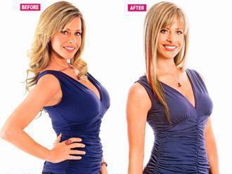 DINA MANZO : BREAST REDUCTION : breast implants : breast augmentation : celebrity cosmetic surgery : remove breast implants
