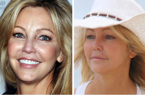 Heather Locklear, entertainment, celebrities, cosmetic surgery, beauty, botox