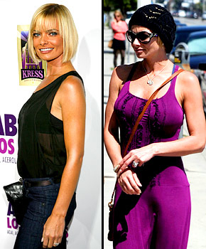 celebrities : entertainment : beauty ; breast augmentation : breast implants