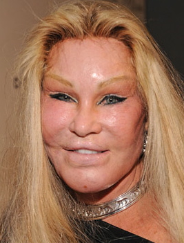 Celebrity cosmetic surgery : plastic surgery : facelift : too much plastic surgery