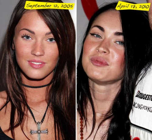Megan Fox : Lip augmentation : beauty : entertainment : celebrities : cosmetic surgery