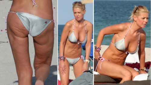 tara reid, liposuction, skin dimples, fat grafting, cosmetic surgery, celebrities, beauty