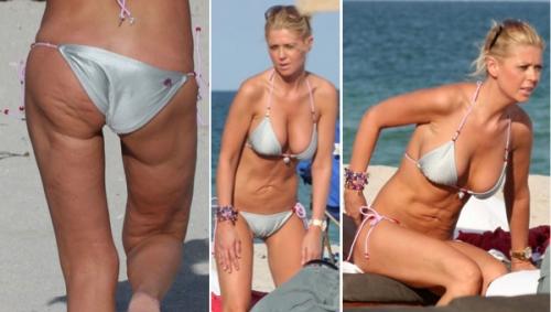 tara reid, liposuction, skin dimples, fat grafting, cosmetic surgery, celebrities, beauty