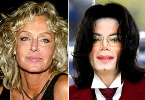 Farrah Fawcett plastic surgery, Michael Jackson plastic surgery, celebrity plastic surgery, celebrity cosmetic surgery