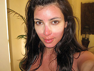 beauty, Kim Kardashian, sunburn