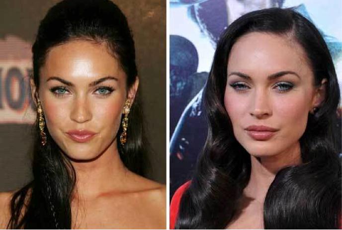 megan fox surgery before after. Megan Fox cosmetic surgery,