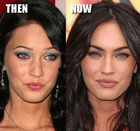 Megan Fox lip augmentation, Megan Fox lip injections, celebrity plastic surgery, celebrity cosmetic surgery