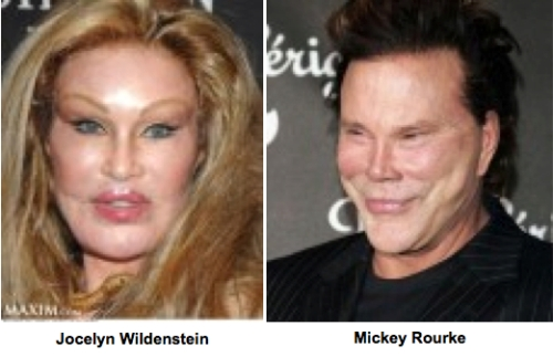 Mickey Rourke plastic surgery, Jocelyn Wildenstein, celebrity cosmetic surgery, bad plastic surgery, bad facelift