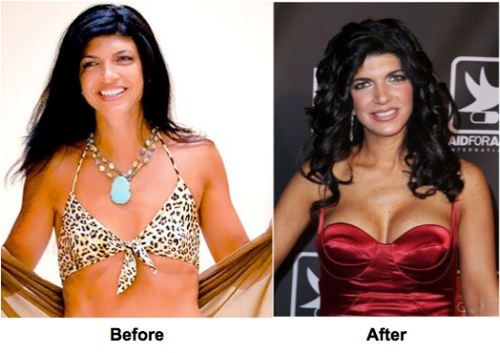 Teresa Giudice, breast augmentation, breast implants, cosmetic surgery, celebrities, entertainment, beauty