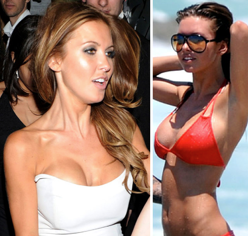 What Happened To Audrina S Breast Implants Celebrity Plastic
