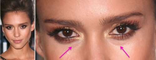 Jessica Alba, Jessica alba plastic surgery, blepharoplasty, eyelid bags, celebrity cosmetic surgery, celebrity plastic surgery, MAS, Manhattan Aesthetic Surgery