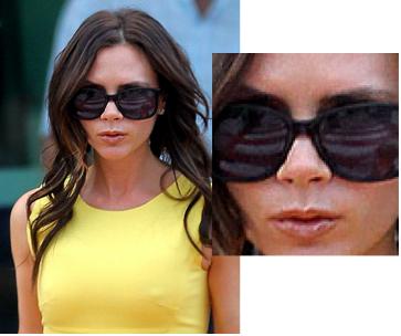 Victoria Beckham nosejob, Victoria Beckham, Posh, Spice girls, celebrity cosmetic surgery, celebrity plastic surgery, entertainment, beauty, rhinoplasty, boxy tip