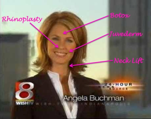 angela buchman plastic surgery, newswomen plastic surgery, celebrity plastic surgery, botox, juvederm, mas, manhatan aesthetic surgery, nicholas vendemia