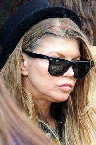 fergie plastic surgery, fergie lip injections, fergie rhinoplasty, fergie nosejob, fergie facelift, celebrity plastic surgery, celebrity cosmetic surgery, celebrity gossip
