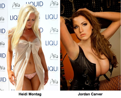 DDD cup Implants http://highsocietyplasticsurgery.com/2010/08/18/heidi-montag-breast-implants-2/