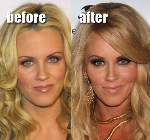 jenny mccarthy plastic surgery, jenny mccarthy cheekbone augmentation, jenny mccarthy facelift, celebrity plastic surgery, celebrity cosmetic surgery, MAS, Manhattan Aesthetic Surgery