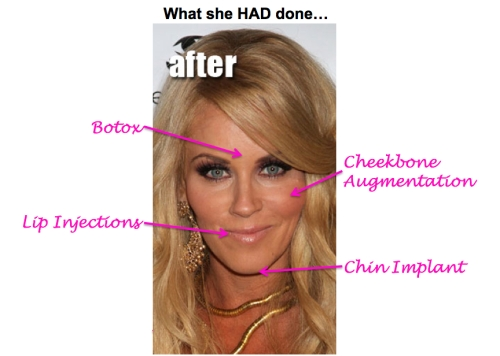jenny mccarthy plastic surgery, jenny mccarthy cheekbone augmentation, jenny mccarthy facelift, celebrity plastic surgery, celebrity cosmetic surgery, MAS, Manhattan Aesthetic Surgery
