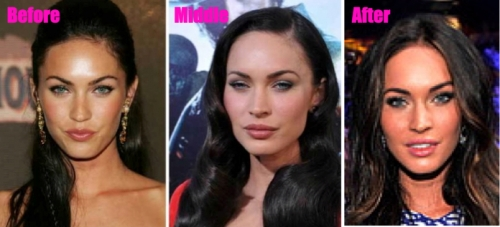 megan fox cheekbone augmentation, megan fox lip injections, megan fox plastic surgery, celebrity plastic surgery, MAS, Manhattan Aesthetic Surgery