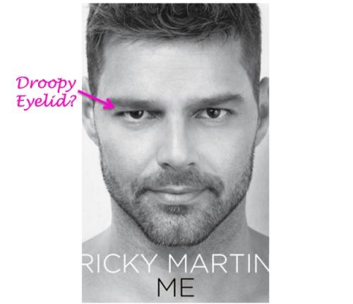 ricky martin plastic surgery, ricky martin botox, ricky martin's new book, celebrity plastic surgery,, MAS, Manhattan Aesthetic Surgery