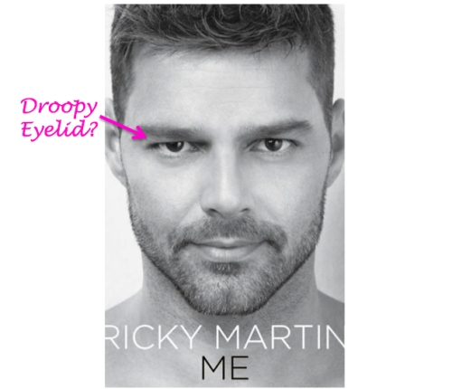 ricky martin plastic surgery, ricky martin botox, ricky martin's new book, celebrity plastic surgery,, MAS, Manhattan Aesthetic Surgery