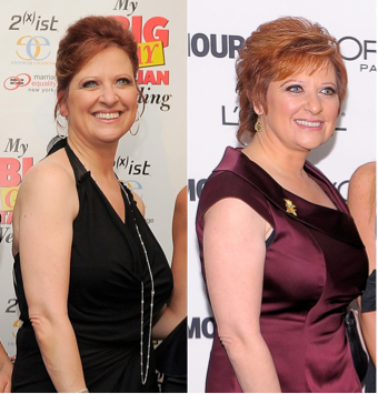 caroline manzo plastic surgery, caroline manzo weight loss, brow lift, tip rhinoplasty, neck lift, facelift, blepharoplasty, MAS, Manhattan Aesthetic Surgery, celebrity plastic surgery, celebrity plastic surgeon