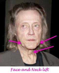 christopher walken plastic surgery, christopher walken needs a facelift, saggy skin, jowls, celebrity plastic surgery