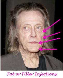 christopher walken plastic surgery, christopher walken needs a facelift, saggy skin, jowls, celebrity plastic surgery