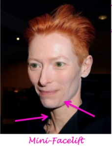 tilda swinson plastic surgery, tilda swinson needs a facelift, saggy skin, jowls, celebrity plastic surgery