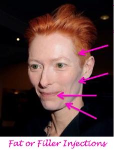 tilda swinson plastic surgery, tilda swinson needs a facelift, saggy skin, jowls, celebrity plastic surgery