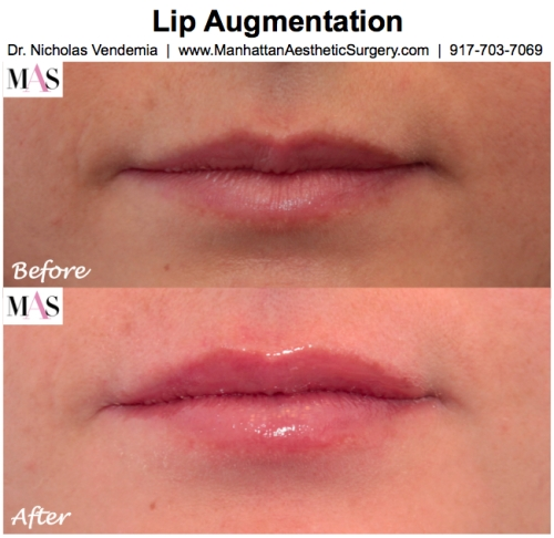 Dr Nicholas Vendemia, MAS, Manhattan Aesthetic Surgery, Plastic Surgeon New York City, Lip Injections New York City, Lip Augmentation New York City, Juvederm, Restylane, Radiesse