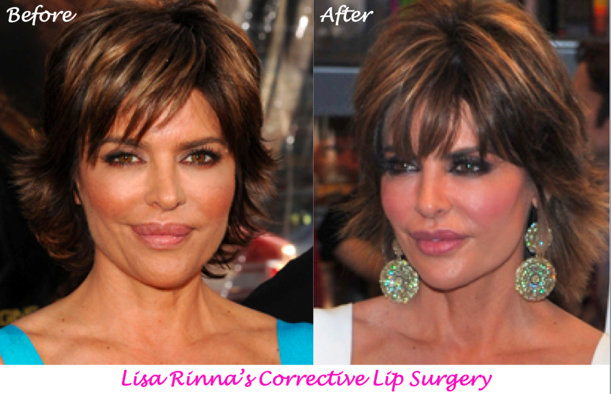 Lisa S Lumpy Lips Longer Lasting Fillers Aren T The Best