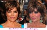 Lisa's Lumpy Lips! Longer lasting fillers aren't the best option...