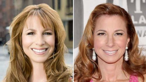 Jill Zarin's liquid facelift, Real housewives plastic surgery, Plastic Surgeon New York City, Dr. Nicholas Vendemia, MAS, Manhattan Aesthetic Surgery, Juvederm, Restylane, Radiesse, Sculptra