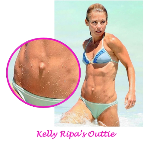 Kelly Ripa plastic surgery, belly button surgery, turn an outtie into an innie, umbilicoplasty, Dr. Nicholas Vendemia, Plastic Surgeon NYC, MAS, Manhattan Aesthetic Surgery