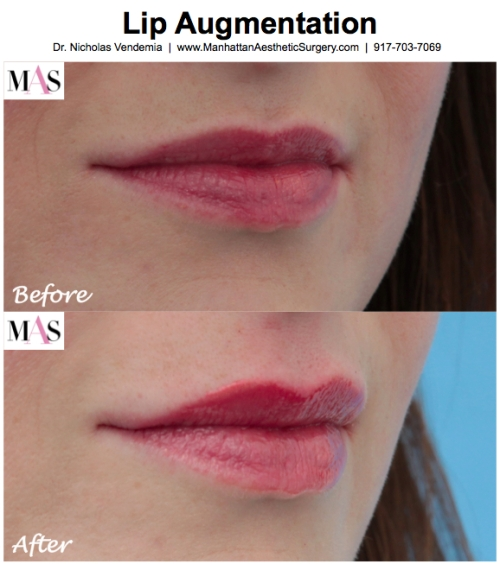 Lip Augmentation by Dr. Nicholas Vendemia of MAS, Lip Augmentation with Juvederm, Before and After Lip Augmentation, Kate Middleton plastic surgery, Kate Middleton Royal Wedding