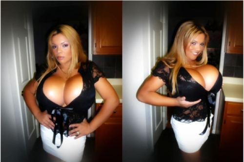 Sheyla Hershey breast implants, largest breast implants, Dr. Nicholas Vendemia, MAS, Manhattan Aesthetic Surgery, Breast Augmentation New York City, Breast Enlargement NYC, biggest boobs