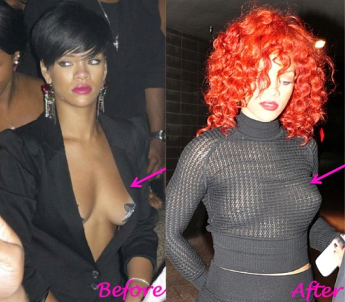 Rhianna breast implants, Rhianna plastic surgery, new york breast augmentation, breast enlargement, New York Plastic Surgeon Dr. Nicholas Vendemia of MAS