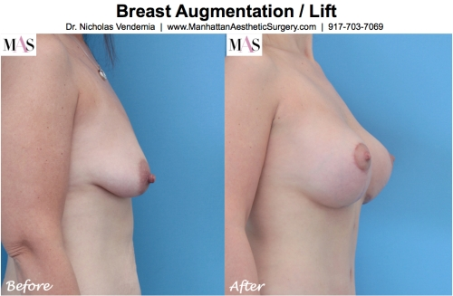 Breast Lift Mastopexy by New York Plastic Surgeon Dr Nicholas Vendemia of MAS | 917-703-7069