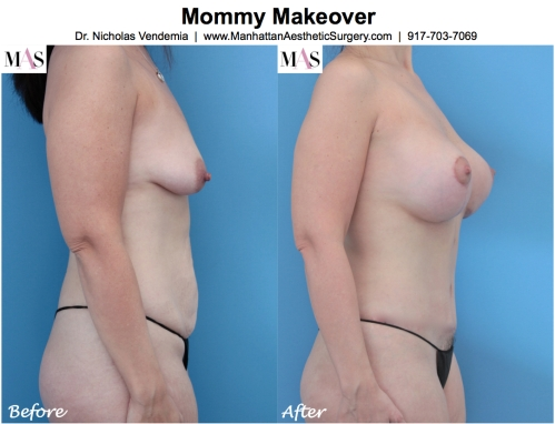 Mommy Makeover Breast Augmentation Breast Lift Mastopexy Augmentation Tummy Tuck by Dr. Nicholas Vendemia of MAS | Manhattan Aesthetic Surgery | Plastic Surgery