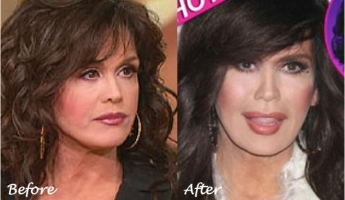 Marie Osmond plastic surgery, marie osmond rhinoplasty, marie osmond fillers, juvederm, botox, blepharoplasty