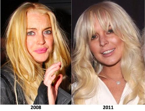 Lindsay Lohan plastic surgery, lindsay lohan rhinoplasty, lindsay lohan lips