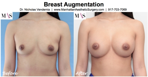 playmate breast augmentation, B cup to D cup breast implants, natural looking D cups, breast augmentation new york, breast implants NYC