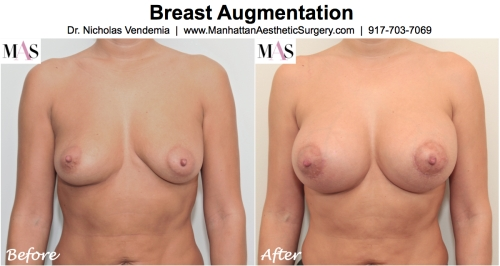 playmate breast augmentation, D cup breast implants, natural looking D cups, breast augmentation new york, breast implants NYC