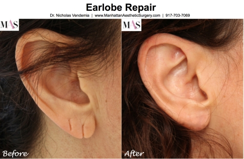 earlobe repair procedure
